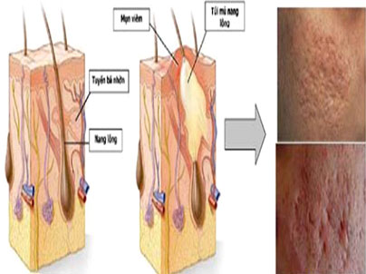 Điều trị sẹo lõm hiệu quả