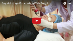 Video trị sẹo tại TMV Đông Á