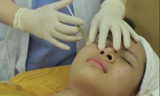 Zoom cận cảnh quy trình điều trị sẹo lõm, sẹo rỗ an toàn 5