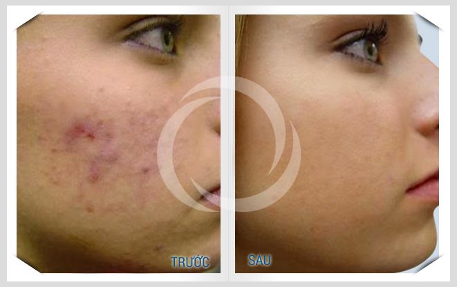 Phương pháp trị sẹo mụn đơn giản nhất 3