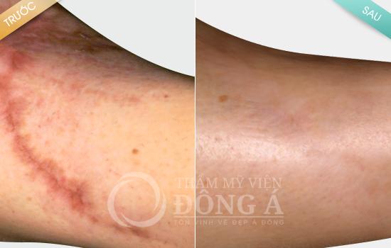 Hình ảnh trước sau điều trị sẹo 6
