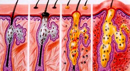 Bí kíp trị sẹo mụn nhanh nhất 2