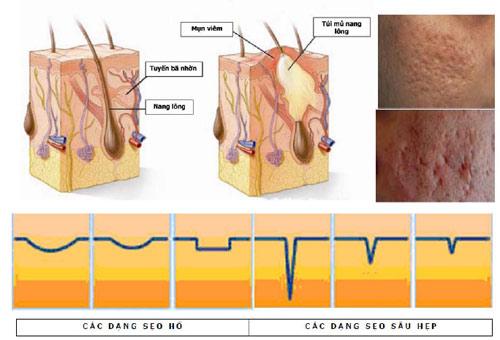 Bác sĩ chia sẻ về nguyên tắc trị sẹo lõm, sẹo rỗ 1