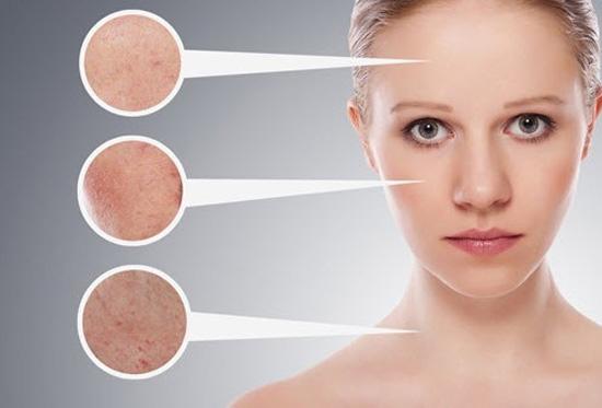 Cách nào trị sẹo lõm không tái phát? 2