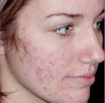 Những vết sẹo mụn lâu năm gây mất thẩm mỹ