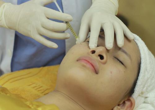 Cách trị sẹo rỗ hiệu quả nhanh nhất 3