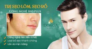 Hướng dẫn giải pháp điều trị sẹo rỗ sẹo lõm cho nam giới