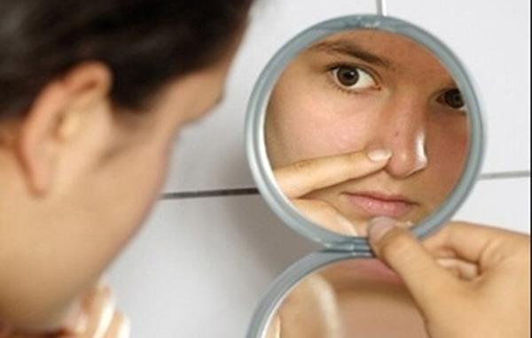 Cách trị sẹo mụn thâm cho làn da đẹp không tỳ vết 1