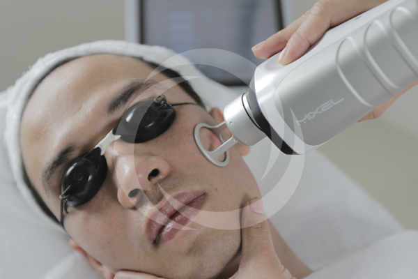 Giải pháp trị sẹo lồi đơn giản, không tái phát 4