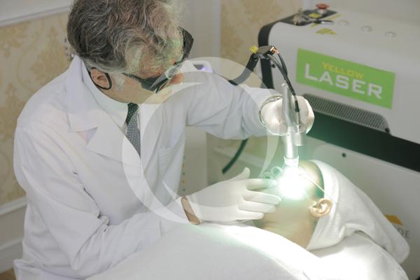 Công nghệ trị nám tại TMV Đông Á