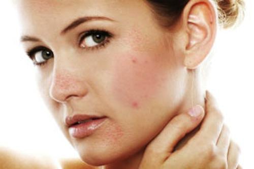 3 lưu ý quan trọng khi điều trị sẹo mụn 1