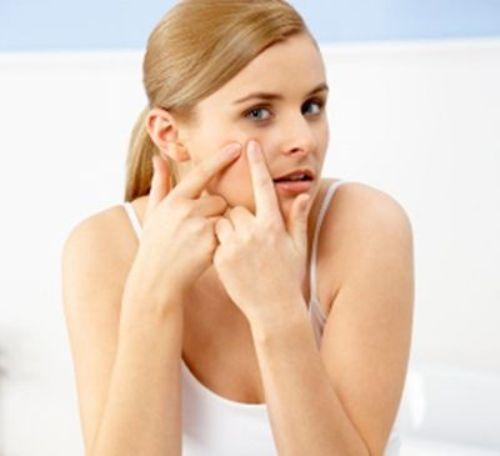 3 lưu ý quan trọng khi điều trị sẹo mụn 2