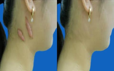 3 Cách làm mờ sẹo lồi hiệu quả vô cùng đơn giản 5