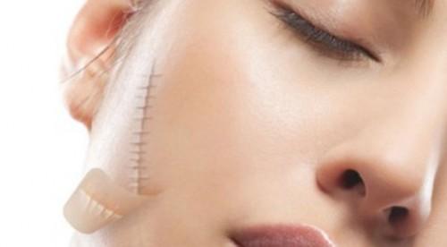 Cách chữa sẹo thâm hiệu quả nhanh cho từng trường hợp cụ thể 2