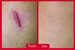 3 phương pháp chữa sẹo lồi hiệu nhanh nhất hiện nay
