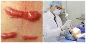 Làm sao để trị sẹo lồi dứt điểm, không đau?