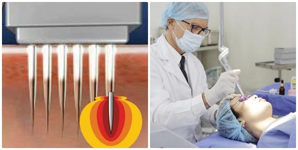 Zoom cận cảnh quy trình điều trị sẹo lõm tại TMV Đông Á 5
