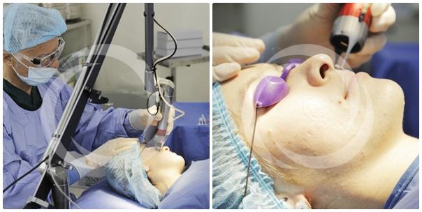 Zoom cận cảnh quy trình điều trị sẹo lõm tại TMV Đông Á 2