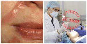 Điểm danh các cách trị sẹo lồi lâu năm phổ biến nhất hiện nay