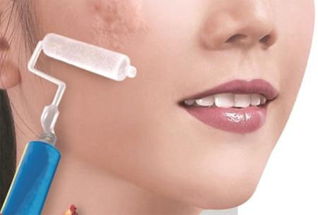 Top 3 cách trị sẹo lồi hiệu quả - chuyên gia khuyên dùng 3