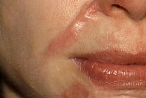 Tại sao trị sẹo lồi bằng phương pháp tự nhiên mãi không khỏi? 1