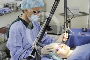 Cách trị sẹo rỗ trên mặt bằng công nghệ Bio Plus hiệu quả triệt để