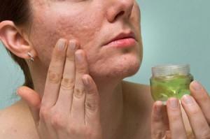 Tổng hợp các cách trị sẹo lõm trên mặt đơn giản và an toàn