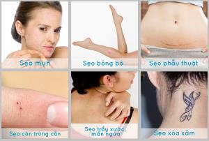Muốn điều trị sẹo hiệu quả cần bỏ ngay những quan niệm sai lầm sau
