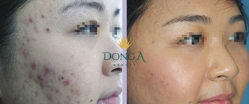 Kết quả sau liệu trình điều trị sẹo thâm Peeling