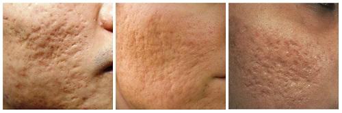 Đối tượng được chỉ định điều trị sẹo rỗ bằng Bio Plus