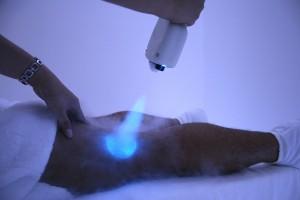 Trị sẹo lồi bằng phương pháp áp lạnh – Cần hiểu rõ trước khi áp dụng!