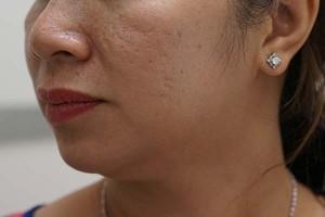 Làm sao để chữa sẹo rỗ sau mụn trên mặt dứt điểm?