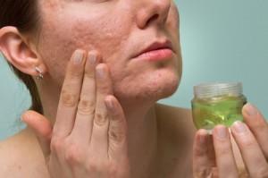 Giúp bạn gỡ rối có nên dùng kem trị sẹo không?