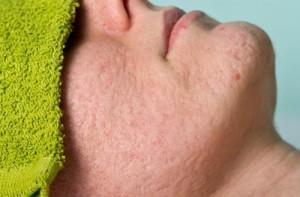 Nguyên nhân và biện pháp trị sẹo rỗ hiệu quả hiện nay