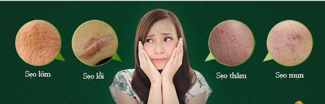 4 lý do bạn nhất định phải biết khi điều trị sẹo tại Bình Dương 4