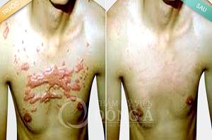 Quy trình trị sẹo lồi 2