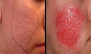 Có nên trị sẹo bằng phương pháp lăn kim không?