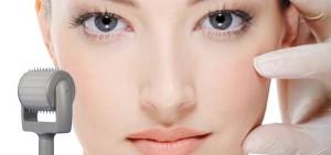 Trị sẹo lõm bằng lăn kim có hiệu quả không? Bác sỹ giải đáp