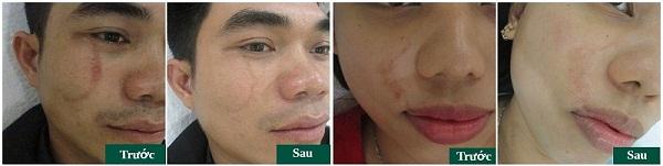 Chuyên gia tư vấn: Trị sẹo tại Đông Á Cần Thơ có an toàn và tốt không? 8