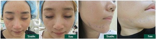 Chuyên gia tư vấn: Trị sẹo tại Đông Á Cần Thơ có an toàn và tốt không? 9