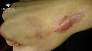 Phương pháp nào điều trị sẹo lồi triệt để nhất hiện nay? Bác sĩ tư vấn