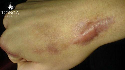 Điều trị sẹo lồi do vết bỏng để lại