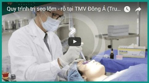 quy trình trị sẹo tại Thẩm mỹ viện Đông Á