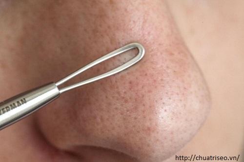 Cách nặn mụn dưới da không để lại sẹo