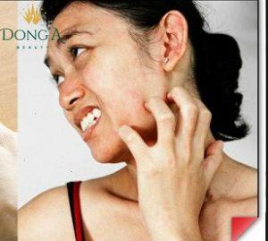 Những lưu ý quan trọng khi bị trị sẹo rỗ bạn phải nắm rõ