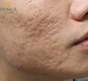 Sẹo lõm có thể bị tái phát nếu không được điều trị tận gốc
