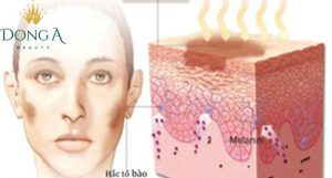 Nguyên nhân và cách trị sẹo thâm trên mặt do mụn để lại