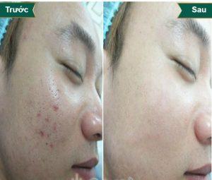 Bio Plus – Phương pháp trị hết sẹo lõm trả lại làn da mịn màng