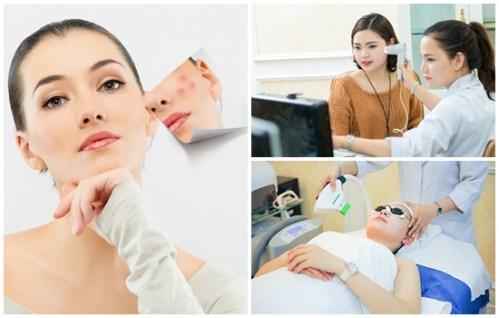 công nghệ trị sẹo thâm peeling