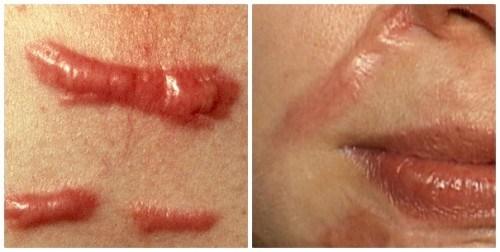Sẹo lồi và cách điều trị sẹo lồi